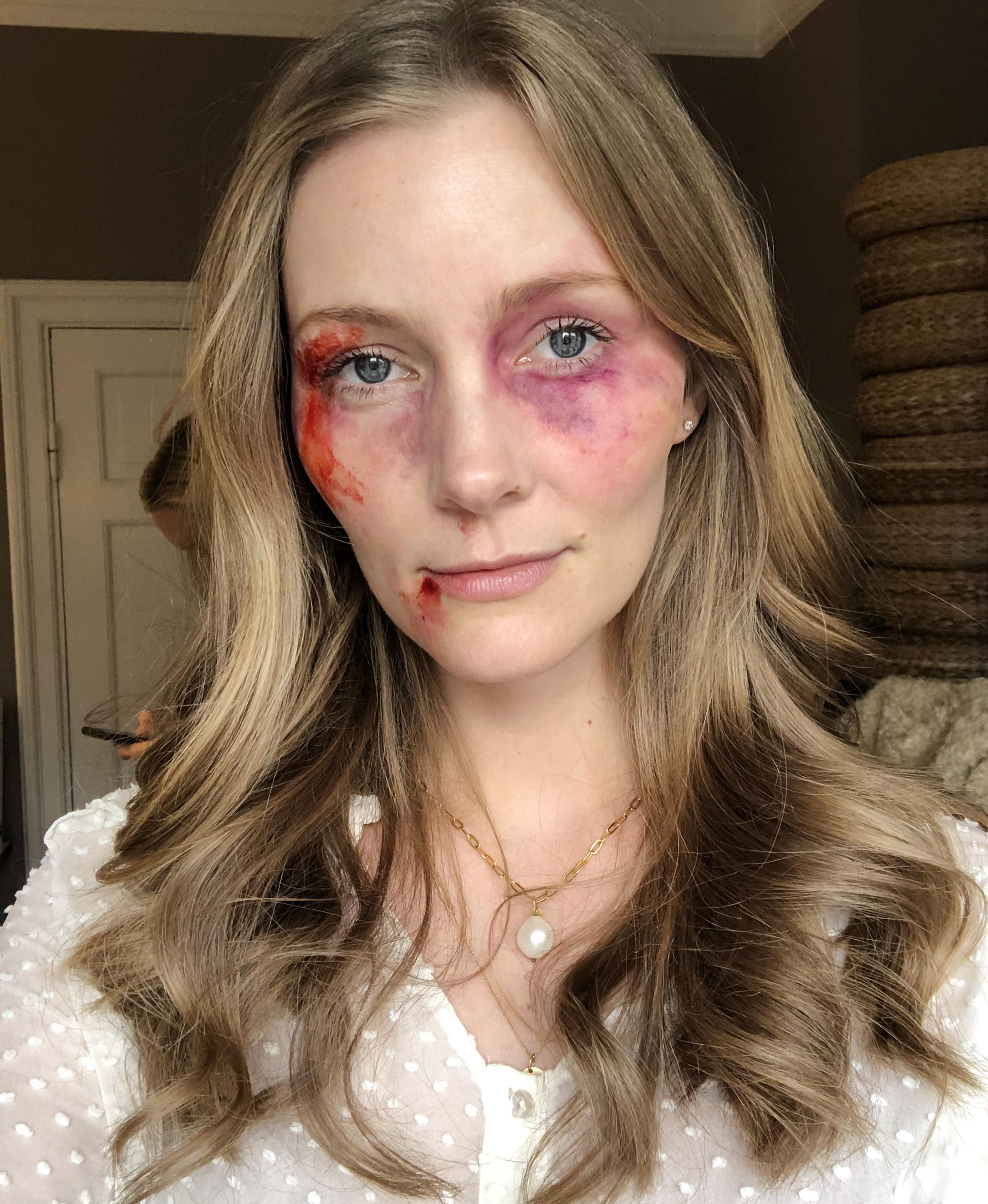 voldsramte-kvinder-kampagne